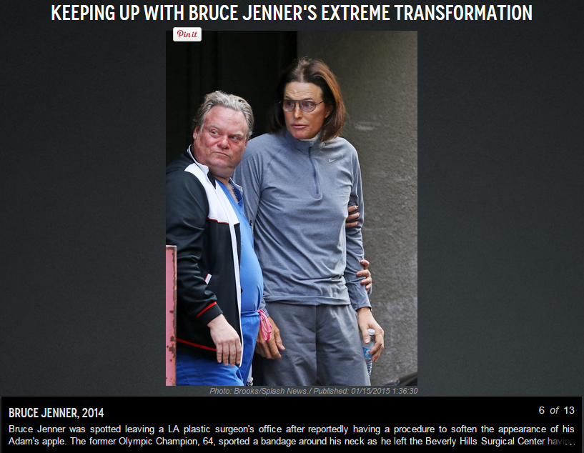 Bruce-Jenner-NY-Daily-News-Plastic-Surgeon
