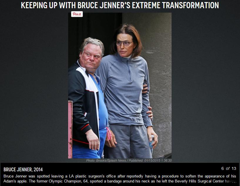 Bruce-Jenner-NY-Daily-News-Plastic-Surgeon
