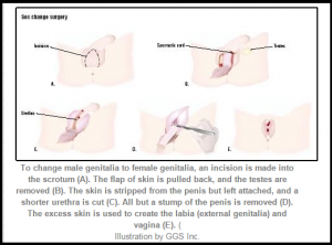 "Body Mutilation at Taxpayers' Expense? Encyclopedia of Surgery graphic of ""Sex Reassignment Surgery"" for ""male-to-female"" transsexuals."